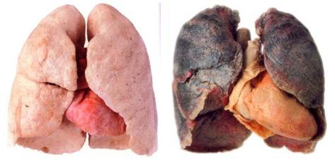 Pulmones sanos y pulmones con cancer por fumar