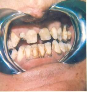 tabaco, dientes y encías
