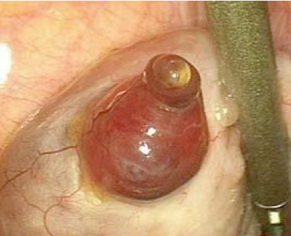 Ovulación humana 3