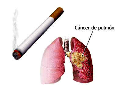 cancer pulmonar por fumar