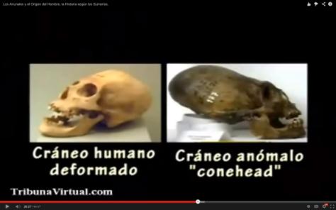 Conehead y craneo humano alargado