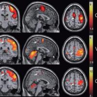 Así luce tu cerebro cuando tienes un orgasmo