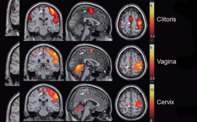 Orgasmo con tu cerebro